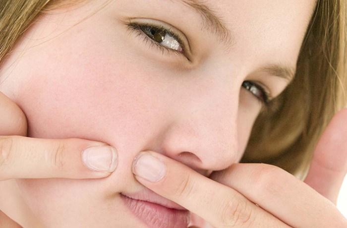 không còn lo mụn với thực phẩm tốt cho da bị mụn